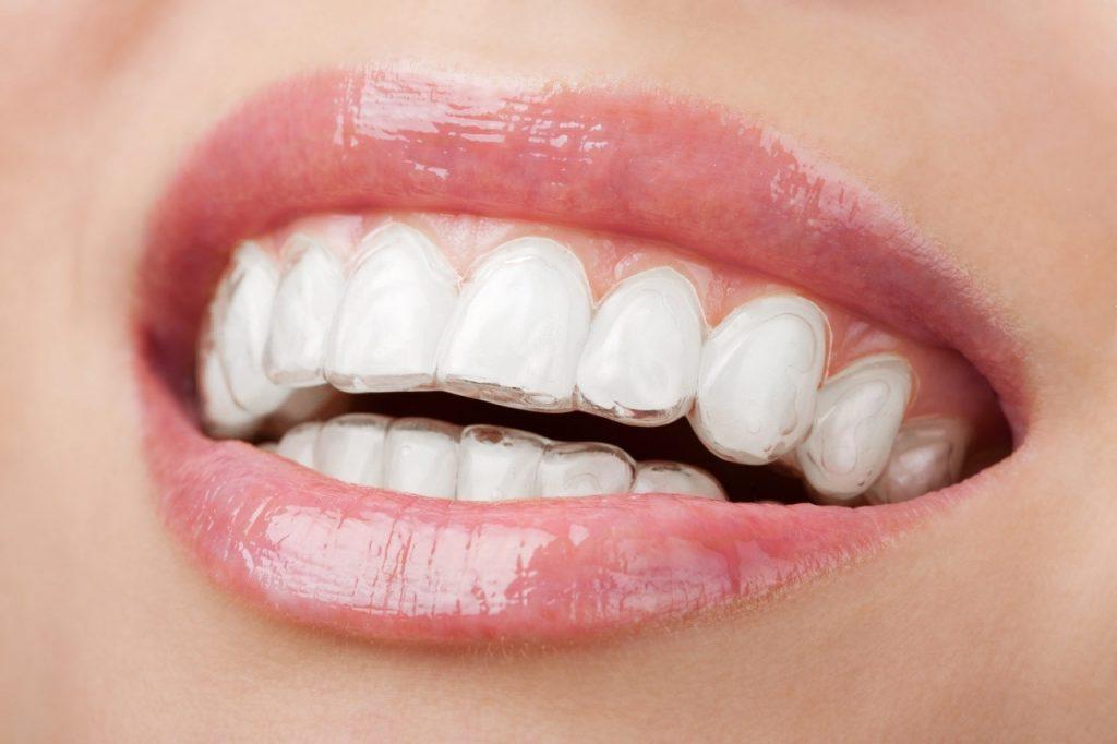 ưu nhược điểm  khay niềng răng trong suốt