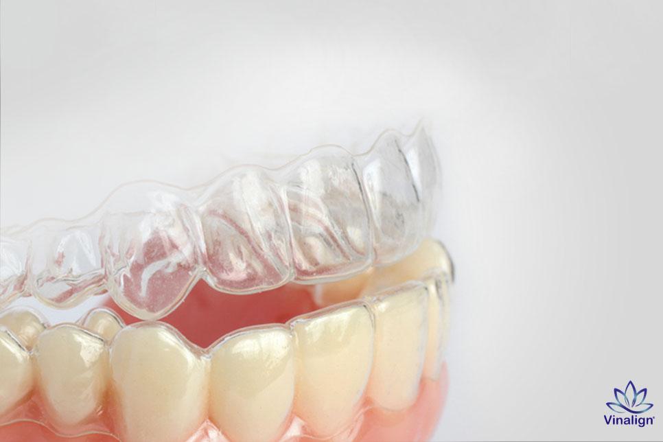 niềng răng trong suốt vinalign