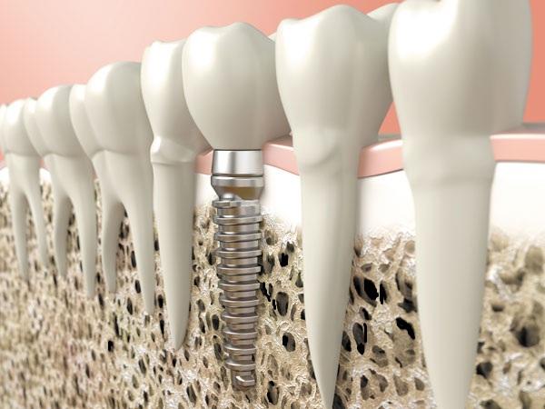 Lợi ích của cấy Implant