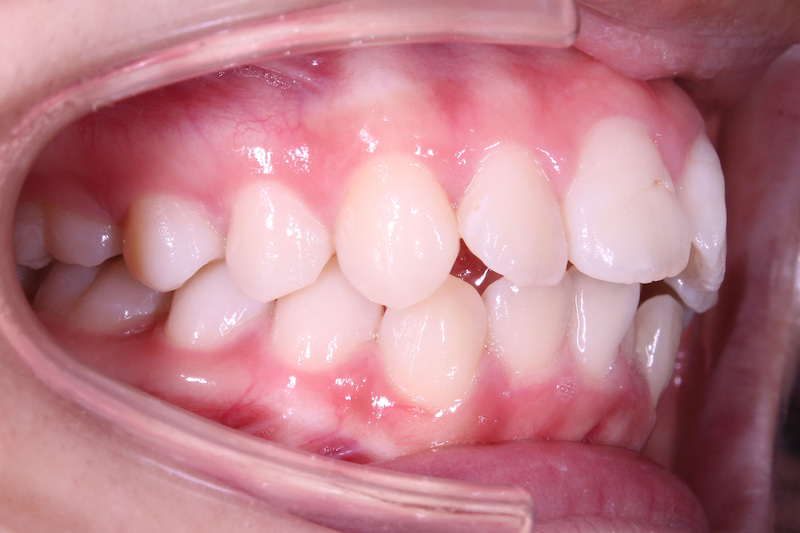 Nhận biết tình trạng răng hô