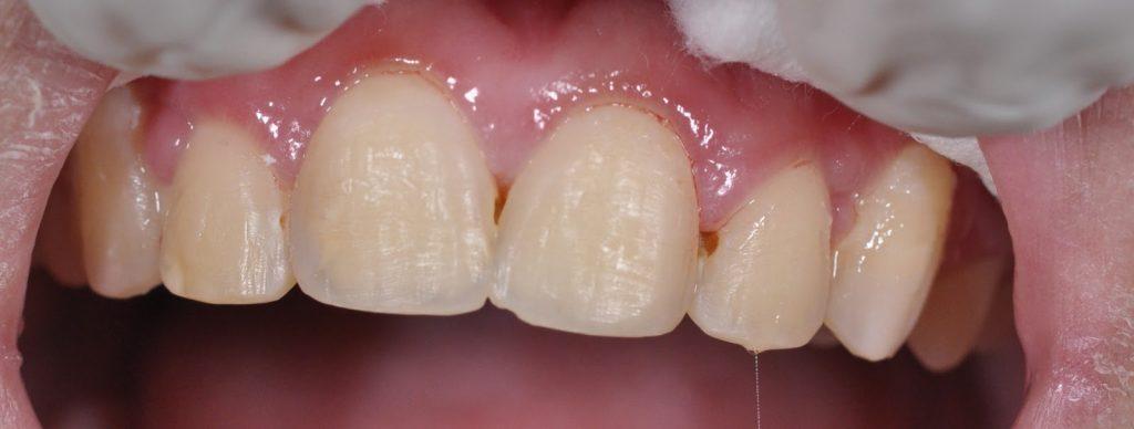 Răng bị đổi màu