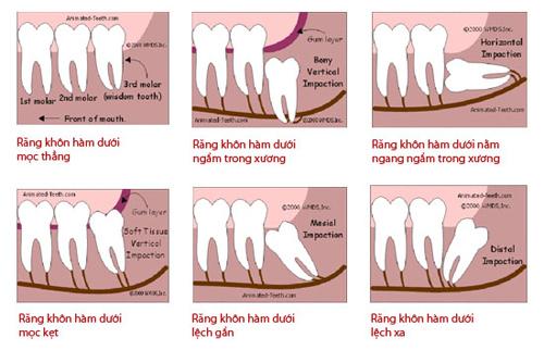 tác dụng của răng khôn