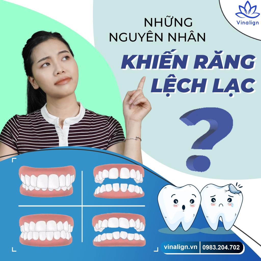 niềng răng khung sắt